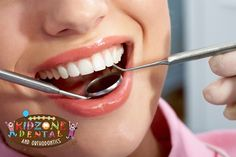 Preventive Dental Care Solution by Kidzone Dental at Houston TX