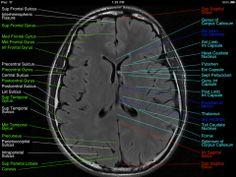 Normal Brain- MRI