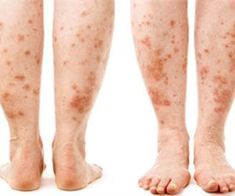 Psoriasis Free - Experimental psoriasis treatment shows promise Professors Predicted I Would Die With Psoriasis. But Contrarily to their Prediction, I Cured Psoriasis Easily, Permanently & In Just 3 Days. Psoriasis Treatment Cream, Psoriasis Cream, Psoriasis Diet, Plaque Psoriasis, Severe Psoriasis, Pune, Psoriasis Remedies, Home Remedies