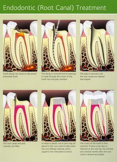 How our Endodontic Treatment helps you?? Endodontic treatment helps you maintain your natural smile, continue eating the foods you love and limits the need for ongoing dental work. With proper care, most teeth that have had root canal treatment can last as long as other natural teeth and often for a lifetime. Make an Appointment: www.truedesigndentistry.com