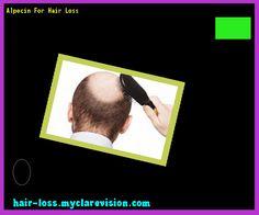 Alpecin For Hair Loss 142927 - Hair Loss Cure!