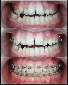 Dental Videos, Dental Braces, Dental Art, Halloween Face Makeup, Pictures, Orthodontics, Photos, Grimm