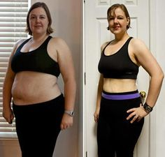 Skin sagging after weight loss what do i do photo 4