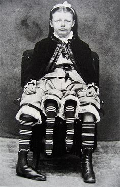 """1818's; Josephene Myrtle Corbin, the Four-Legged Woman, was born in Lincoln County, Tennessee in 1868. Rather than having a parasitic twin, Myrtle's extra legs resulted from an even rarer form of conjoined twinning known as dipygus, which gave her two complete bodies from the waist down. She had two small pelves side-by-side, and each of her smaller inner legs was paired with one of her outer legs. She could move the smaller legs but was unable to use them for walking."