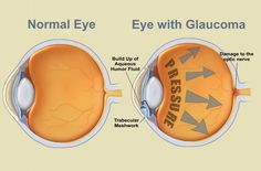 Glaucoma refers to a group of eye conditions that lead to damage to the optic nerve. This nerve carries visual information from the eye to the brain. In most cases, damage to the optic nerve is due to increased pressure in the eye, also known as intraocular pressure (IOP). #EyeTreatmentindelhi #OphthalmologistinGurgaon, #EyeSurgeonGurgaon #diabeticretinopathy