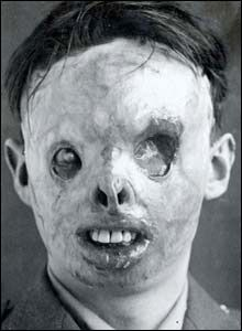 In WW1 this guy had to get plastic surgery