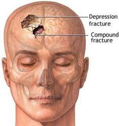 Holy cow! How to treat head trauma