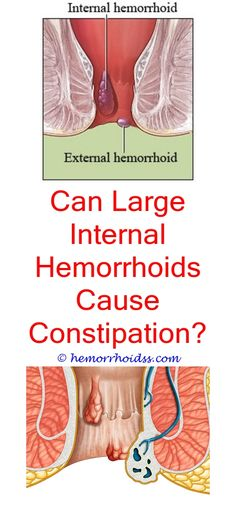 Anal Skin Tag  Hemorrhoids Pictures  Pinterest  Skin Tag-3376