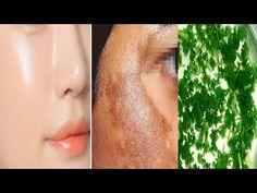 Rețeta tonice de pătrunjel pentru piele frumoasă, eliminarea petelor și a pistruilor - YouTube Peta, Natural Remedies, Youtube, Natural Home Remedies, Maps, Youtubers, Youtube Movies, Natural Medicine