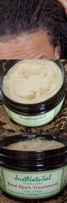 Nutritive Treatment To Help With Bald Spot - Bald Spot Treatment | Black Hair Products