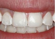 White Spots On Teeth - White Spots On Teeth Treatment