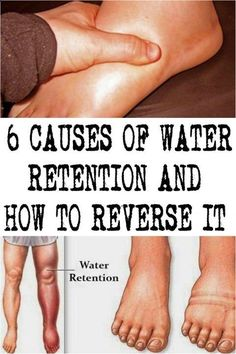 Water retention or otherwise known as edema is a condition of fluids accumulation in the cavities and tissues, and as well as in the circulatory system. The visible results are in the swelling of the Foot Remedies, Herbal Remedies, Health Remedies, Natural Remedies, Holistic Remedies, Lose Arm Fat Fast, How To Lose Weight Fast, Lose Fat, Health Advice