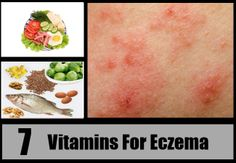 Suffering from Eczema ? Try 7 Best Vitamins For Eczema