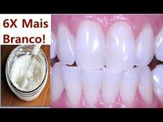 Dentes Brancos NA HORA! Tirar Tártaro e Acabar Com Gengivite 100% Natural!