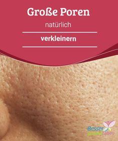 Große Poren #natürlich verkleinern Große #Poren können bei fetter Haut entstehen, bei zunehmendem Alter können diese noch größer werden. Es gibt verschiedene Behandlungsöglichkeiten, um Poren zu verkleinern. Natürliche Mittel sind nicht nur preiswerter als die #handelsüblichen, sie sind oft auch wirksamer.