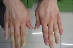 Cold Hands And Feet Are Much More Than Poor Circulation – Here's The Warning Sign Your Body Sends To You - World Health Info Cold Fingers, Cold Hands, Raynaud's Disease, Poor Circulation, Skin Rash, Types Of Cancers, Holistic Nutrition, Living At Home, Warning Signs