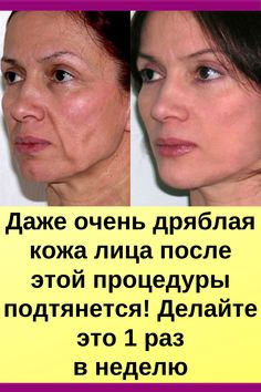 Beauty Supply Near Me, Beauty Care, Beauty Hacks, Face Yoga, 10 Minute Workout, Face Massage, Yoga Tips, Alternative Health, Natural Makeup