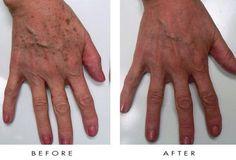 IPL skin rejuvenation treatment on the hands