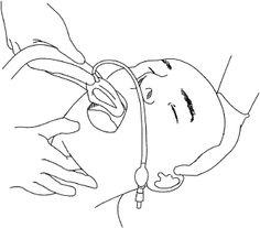 Laryngeal Mask Airway (LMA) Insertion Technique
