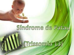Resumo da Sindrome de Patau e Características