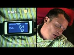 Sleep Apnea Linked to Speedier Memory Loss