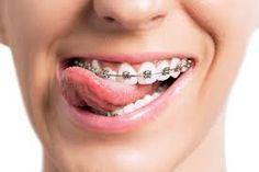 Masterpiece Smiles Orthodontics.
