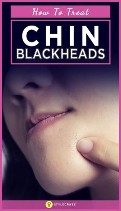 Blackheads Remedies How-to-treat-chin-blackheads - Nothing is more annoying than finding blackheads on your chin. And the more you clear them, the more they reappear. They put a damper on your dream to achieve bright and glowing skin Blackhead Remedies, Blackhead Mask, Blackhead Remover, Chin Acne Treatment, How To Get Rid, How To Remove, Beauty Skin, Health And Beauty, Dark Armpits