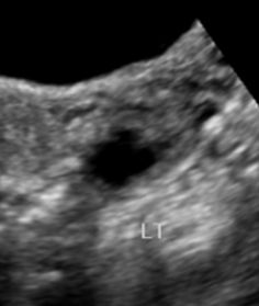 The cogwheel sign refers to an imaging appearance in pelvic imaging of thickening loops of the Fallopian tube seen on cross-section. There are infolding projections (sometimes looking like nodules) into the Fallopian tube lumen which is likened t. Pelvic Inflammatory Disease, Cambridge University, Signs, Radiology, Shop Signs, Sign