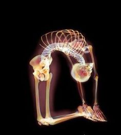 What the spine looks like in ustrasana.