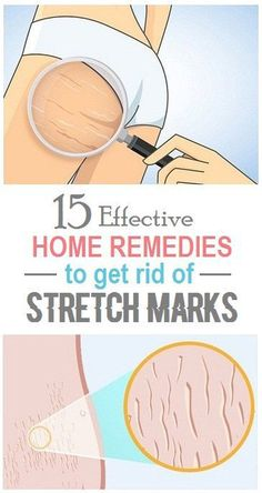 Everyone wants to retain their glowing skin forever, but skin loses its glowing youthfulness naturally with increasing age. According to dermatologists, stretch marks are narrow streaks or lines on…