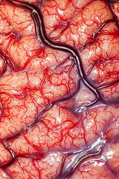 The surface of a living Human Brain. (via wreckandsalvage) Source…