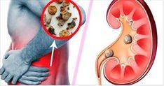 Há muitas pessoas que sofrem com pedras nos rins.Este é um problema que pode causar bastante sofrimento.Os cálculos se formam quando a urina contém grande quantidade de certas substâncias (cálcio, ácido úrico) que formam cristais.