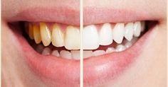 Astuce Surprenante : Comment Détartrer les dents au naturel à la Maison!     Vos dents manquent d'éclat et ont besoin d'un détartrage. Seu...