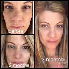 Rodan + Fields REDEFINE regimen paired with our AMP MD roller!  Message me to get started!!