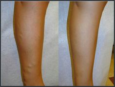 varicose veins: the before and after