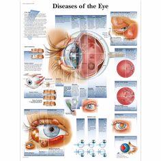 Ziekten van het oog grafiek - 4006666 - VR1231UU - oftalmologie - 3B wetenschappelijke