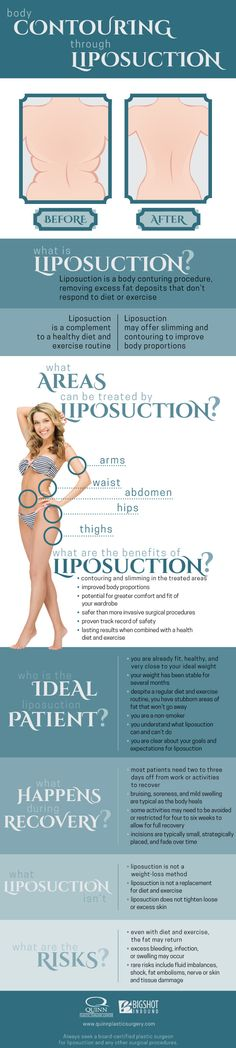 You exercise regularly and eat a healthy diet full of fruits, vegetables, and lean protein, and overall you are happy with the results with one exception — those stubborn pockets of fat that just won't budge. Check out this fun infographic to learn more about the benefits of liposuction.