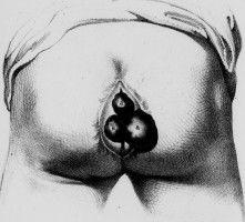 Hemorrhoid Treatment At Home - http://issuu.com/humanecats/docs/hemorrhoid1427460357.pdf