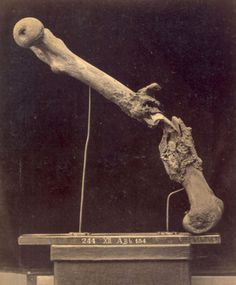 Photograph of bone specimen, Necrosis and Exfoliation and Deposits of Spongy Callus after a Gunshot Fracture of the Left Femur, circa 1870. The damaged femur was removed from Private John Keith, who had been injured in 1862 at the second battle of Bull Run, and later died from his wound.