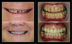 http://www.promjaidental.com/web/dental-veneers.html?servOff_id=17 Veneers in Bangkok and Phuket can improve patients' teeth appearance.  Porcelain Veneers is used in Cosmetic dentistry to help patients feel more confident with their smiles. Promjai Dental Clinic in Bangkok and Phuket sculpt veneers to suit for each patient.  #veneersBangkok