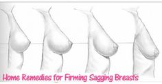 Remedies for Sagging Breasts