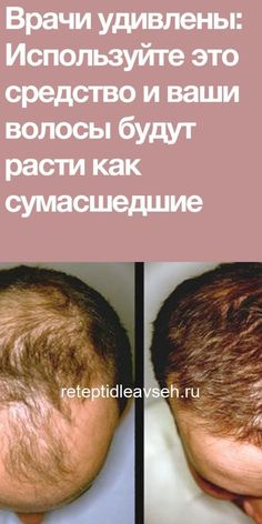 Hair Loss Remedies, Hair Growth, Healthy Lifestyle, Food Photography, The Cure, Healthy Eating, Hair Beauty, Weight Loss, Healthy Recipes