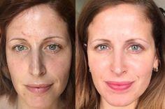 Pori dilatati: quali sono i rimedi e i prodotti più efficaci per restringere i pori della pelle? Qui vi mostro cosa fare per ridurre i pori con la skincare!