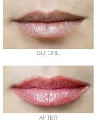 How To Get Plumper Lips - Visit http://www.pricecanvas.com/health/lip-plumper/ For Lip Plumper.