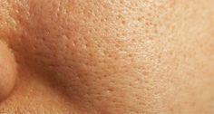 Os poros dilatados, mais comuns em quem tem a pele oleosa, costumam se agravar no verão, período em que a transpiração aumenta. Além de fazer uma boa limpeza de pele a cada quinzena, alguns cuidados diários também são fundamentais, como lavar com sabonete, usar adstringente, esfoliar a área e aplicar
