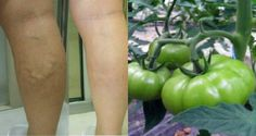 Tomate verde - varizes - Cura pela Natureza