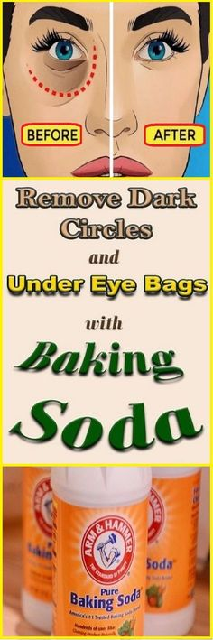 Remove Dark Circles & Under Eye Bags & Baking Soda & Lemon! – Health Beauty Ho… Dark Circles & Under Eye Bags & Backpulver & Zitrone entfernen ! Makeup Tricks, Home Remedies, Natural Remedies, Infection Des Sinus, Swollen Eyelid, Diy Beauty Hacks, Beauty Tips, Baking Soda Mask, Baking Soda And Lemon