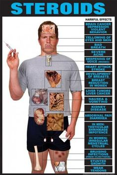 Anabolic steroids cause dangerous side effects, but also many heath conditions. Discover why you should not take steroids and what these health risks are. Best Bodybuilding Supplements, Bodybuilding Memes, Bodybuilding Motivation, Steroids Side Effects, Quit Smoking Motivation, Gym Workout Tips, Workouts, Workout Challenge, Anabolic Steroid