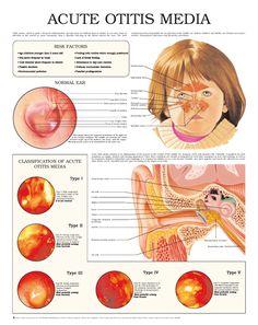 Acute otitis media 5144