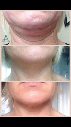 Radio frequency Radio Frequency Skin Tightening, Zsa Zsa, Ultrasound, Youth, Aesthetics, Age, Cosmetics, Makeup, Make Up